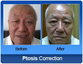 surgery anisometropic amblyopic adult laser